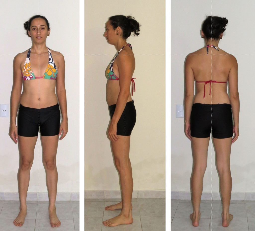 alterações_posturais